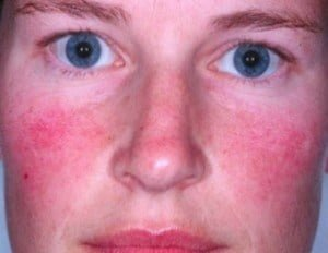 Acne rosacea symptoms, causes and other risk factors