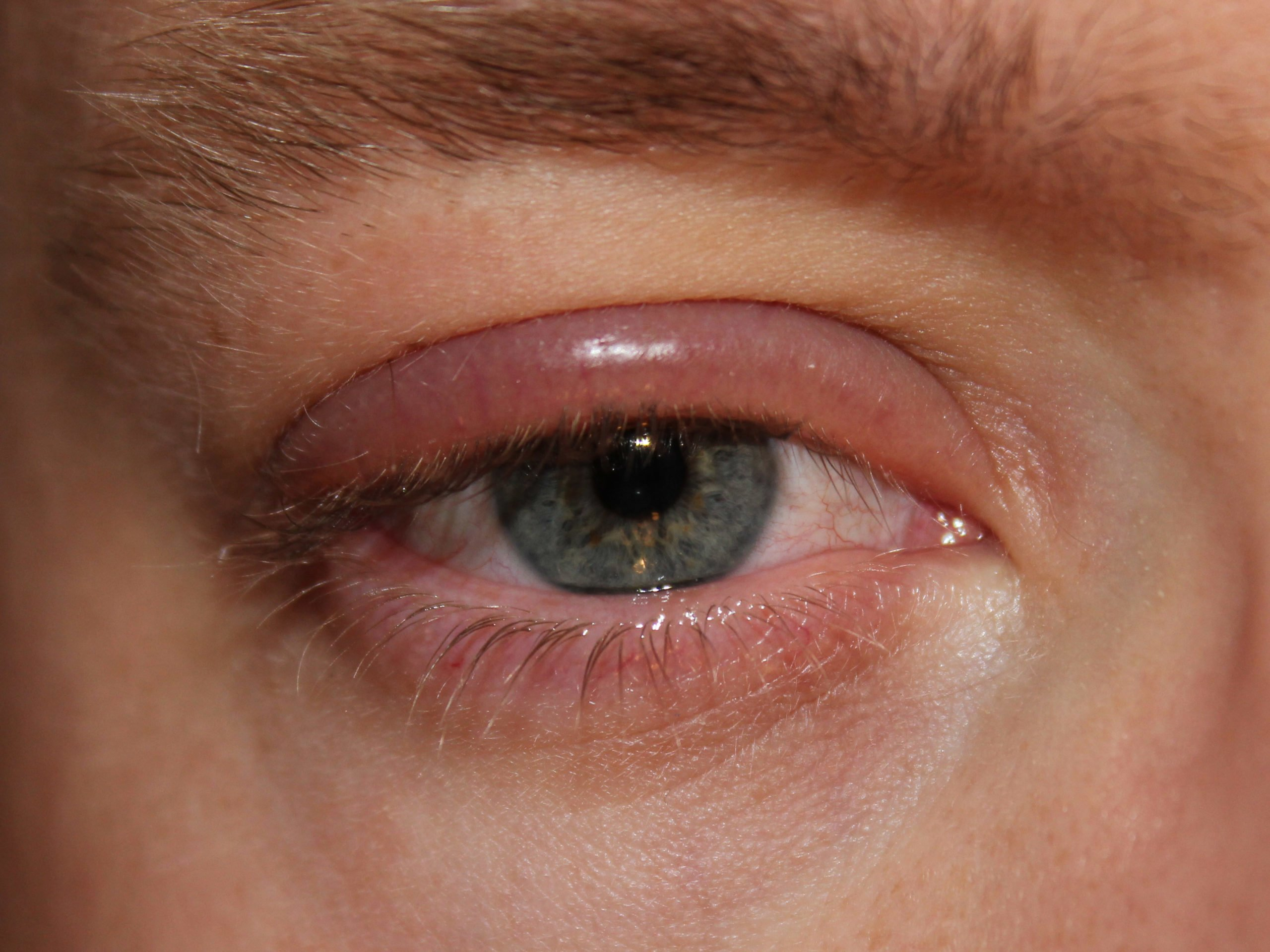 Coconut Oil for Pink Eye. On the other hand, viral conjunctivitis produces clear, watery secretions. Allergic conjunctivitis is usually caused by external factors like cosmetics, dust, pollens, and other allergens. This type of eye infection isn't contagious but causes discomfort because of the irritation and burning sensation in the eyes.
