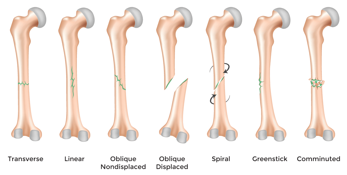 Fractures Symptoms Causes And Other Risk Factors