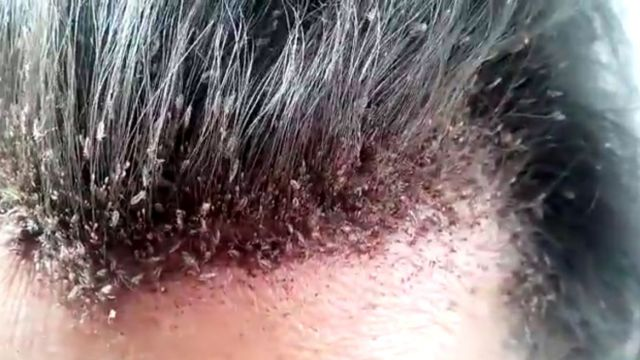 Head Lice Infestation Symptoms Causes And Risk Factors