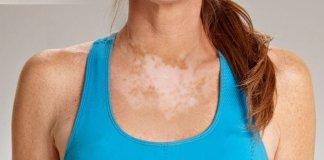 leucoderma (Vitiligo) natural treatment