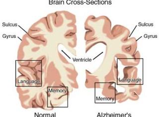 alzheimer, alzheimer home remedy