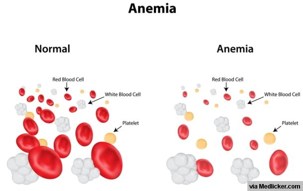 anemia home remedy