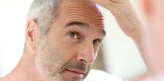 avoid baldness