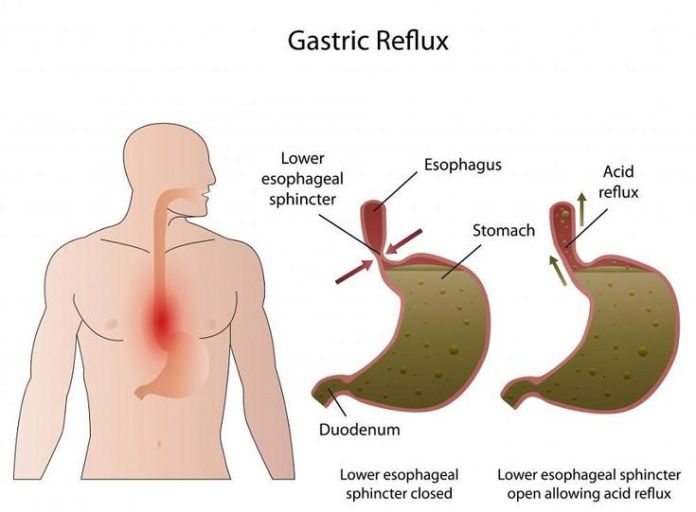 Gallbladder Treatment Home Remedy