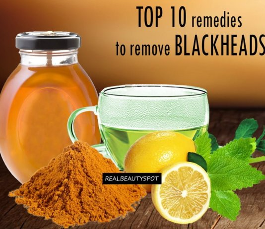 blackheads home remedy
