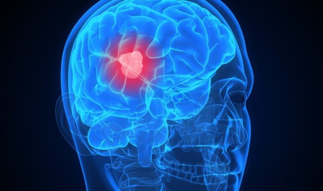 brain tumor home remedy damage symptom