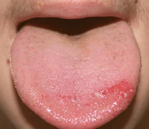 burning tongue syndrome