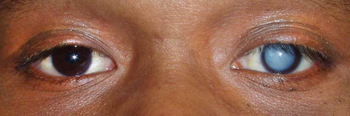 Natural cures for cataracts, cataract home remedy