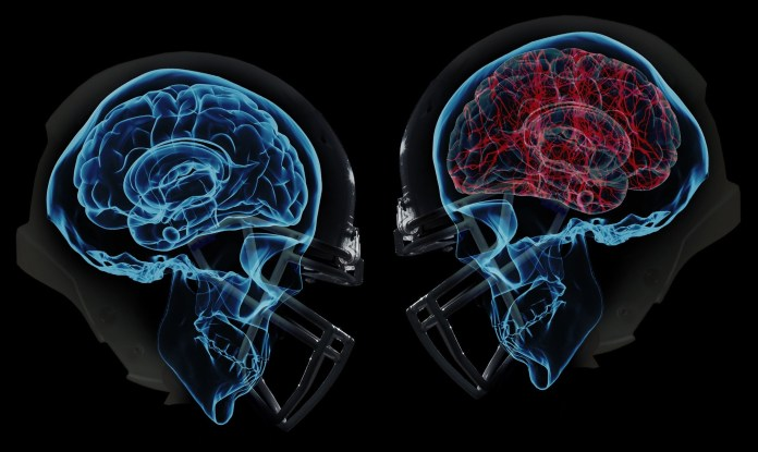 Natural cures for concussion