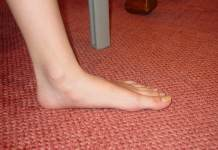 Flat feet: Symptoms, Causes and Risk factors