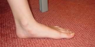 Flat feet: Symptoms, Causes and Risk factors