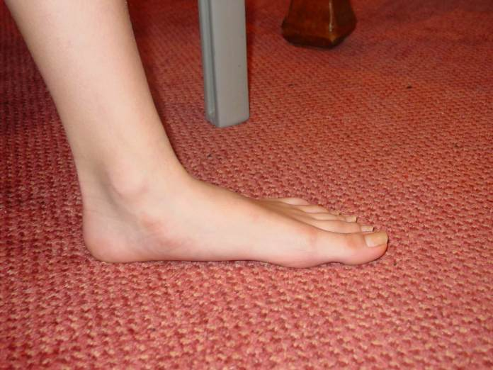 Natural cures for flat feet