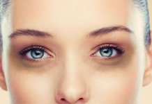 dark circle home remedy, Natural cures for dark circles under eyes