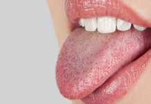 Natural cures for dry mouth