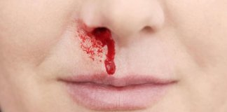 nosebleeds natural treatment