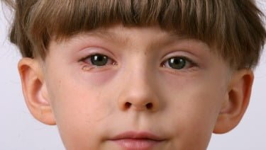 Natural cures for eye infections, eye infection home remedy