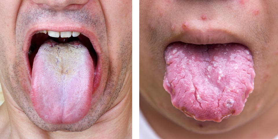 White Tongue And Causes Cures