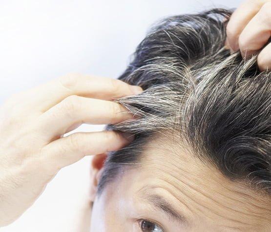 Hair graying