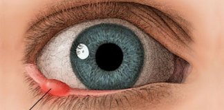 Eye twitching, eye infections