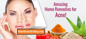 How to Get Rid of Acne: Causes & 19 Home Remedies
