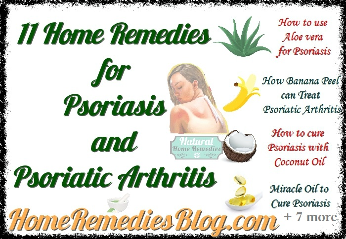 11 Home Remedies for Psoriasis and Psoriatic Arthritis