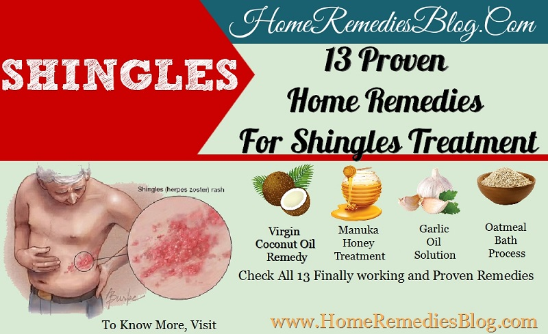 13 Powerful Home Remedies For Shingles Treatment Home