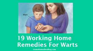 19 Best Effective Warts Home Remedies