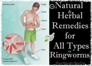21+ Simple Home Remedies For Ringworm Treatment at Home