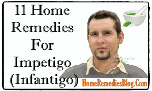 Infantigo: 11 Home Remedies To Get Rid Of Impetigo Fast