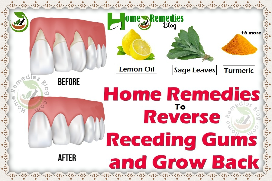9 Home Remedies To Reverse Receding Gums & Grow It Back