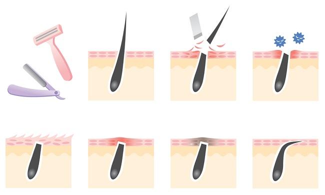 Ingrown Hair-How It Happens