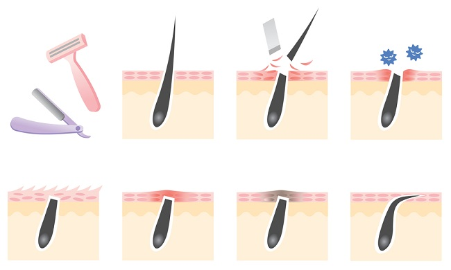 Ingrown Hair-How It Happens