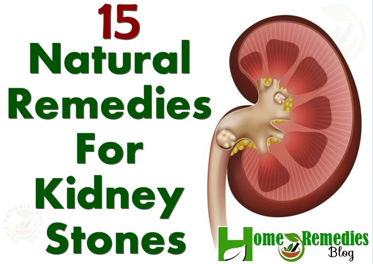 15 Natural Remedies For Kidney Stones