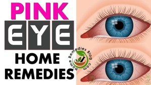 Pink Eye Treatment: 10 Proven Home Remedies For Conjunctivitis