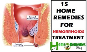 Piles: 15 Home Remedies For Hemorrhoids Treatment