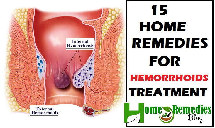 Home Remedies For Hemorroids Treatment