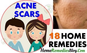 18 Proven Home Remedies For Acne Scars