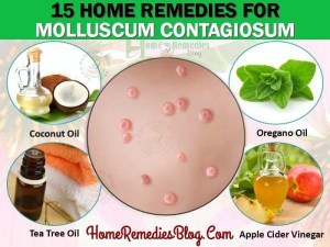 15 Home Remedies For Molluscum Contagiosum Natural Treatment