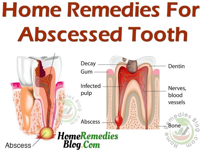 15 Effective Home Remedies For Gum Abscess Treatment