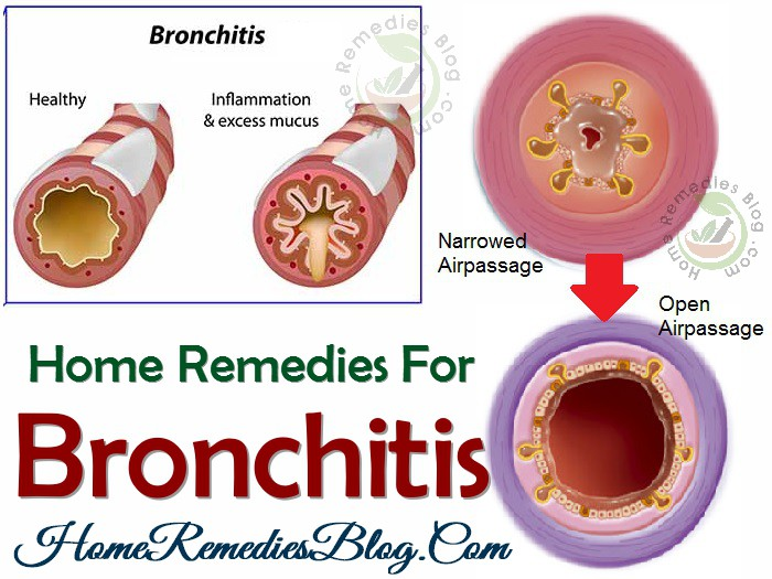 Effective Home Remedies For Bronchitis