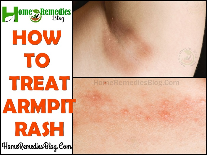 Home Remedies To Treat Armpit Rash