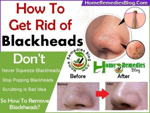 How to Get Rid of Blackheads Using Home Remedies