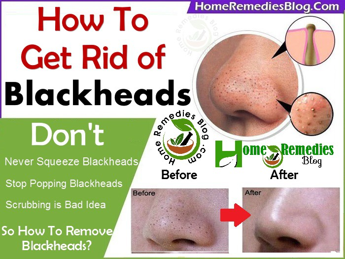 how to get rid of blackheads using home remedies - home remedies blog, Skeleton