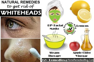How to Get Rid of Whiteheads Fast – 14 Natural Ways