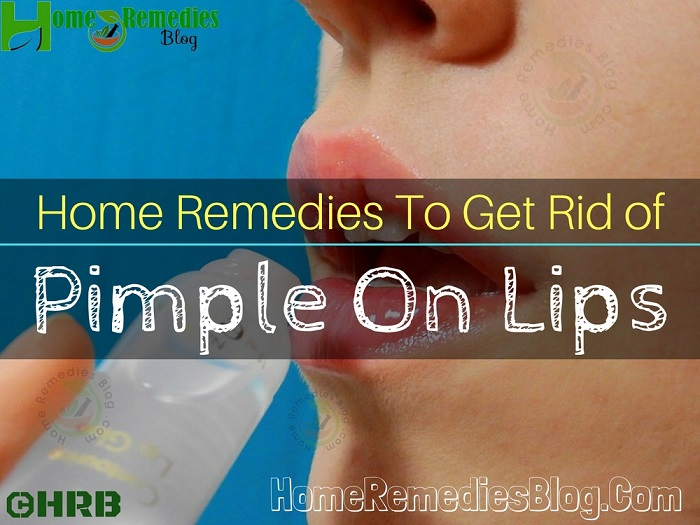 15 Home Remedies To Get Rid of Pimple on Lips