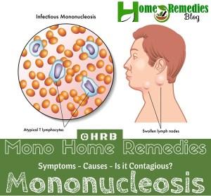 11 Healing Remedies to Treat Contagious Mono Naturally