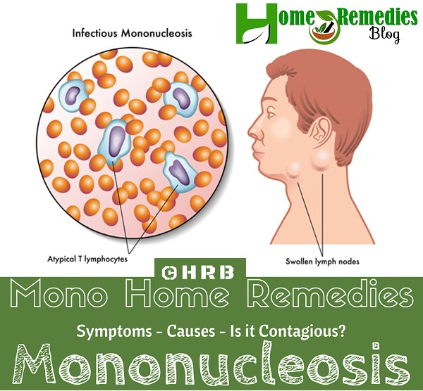 How To Treat Mono Infection Naturally with Natural Remedies
