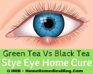 How to Treat Stye Eye Naturally