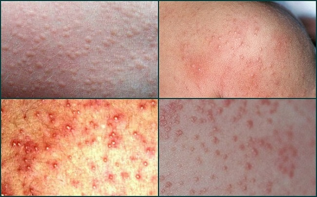 Pictures of Prickly Heat Rash